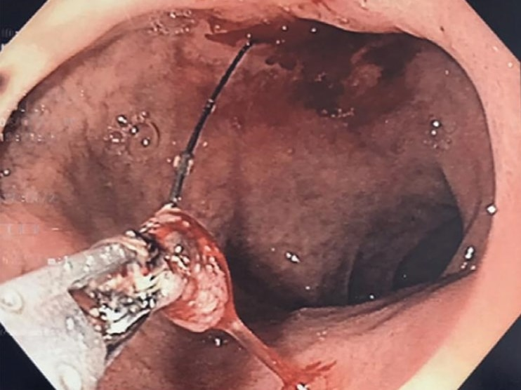 A BBQ bristle is removed from a man's pancreas with pliers.