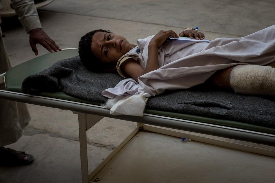 A boy with broken bones and burns awaits treatment.