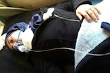 Aya Fadl, lies on a bed, with an oxygen mask to heal breathing difficulties following a suspected chemical attack.
