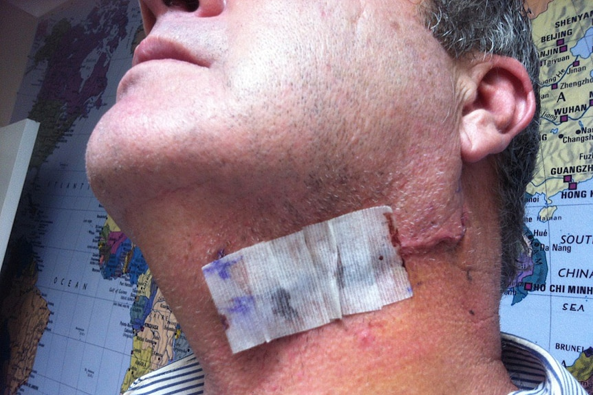 A bandage covers a scar on a man's neck