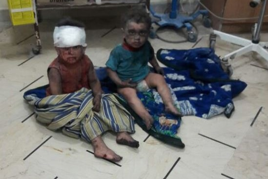 Two bloodied, injured children sit on the floor of an Aleppo, Syria hospital.