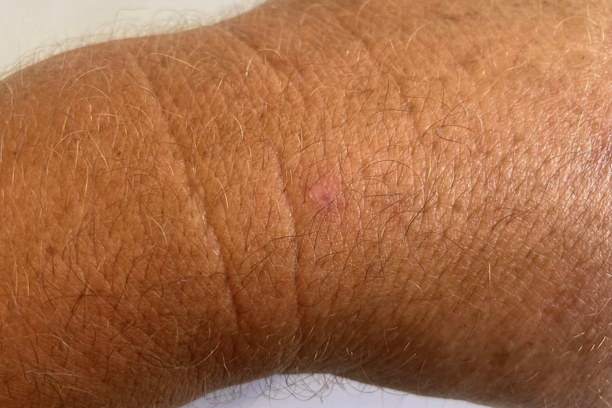 A man's wrist nearly completely healed.