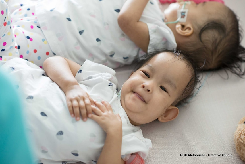 Formerly conjoined twins Nima and Dawa lay beside each other.