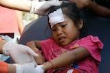 A girl injured in an earthquake is treated in Mataram, Lombok, Indonesia