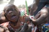 Malnourished baby in Borno, Nigeria