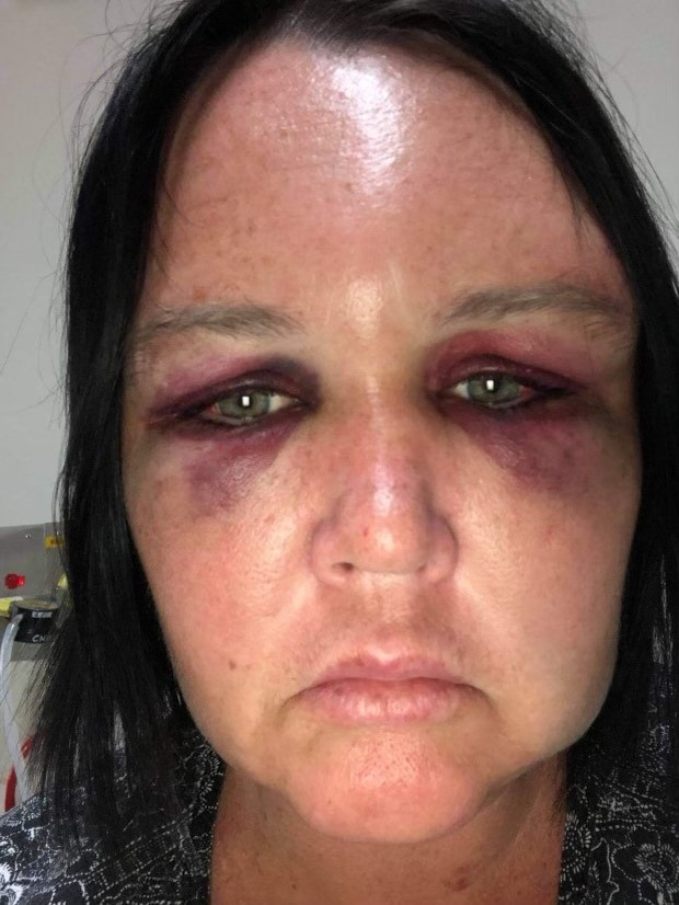 a woman with a bruised face looks at the camera