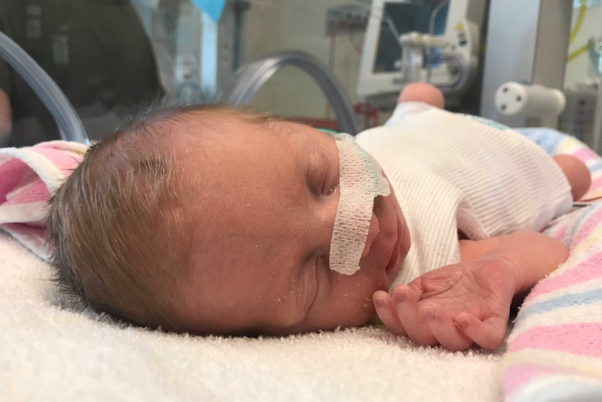 A baby girl, with a nasal tube, lies in a humidicrib in a special care nursery.