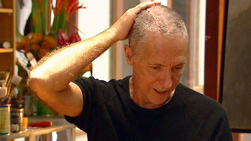 Cartoonist Bill Leak underwent two operations after his balcony fall.