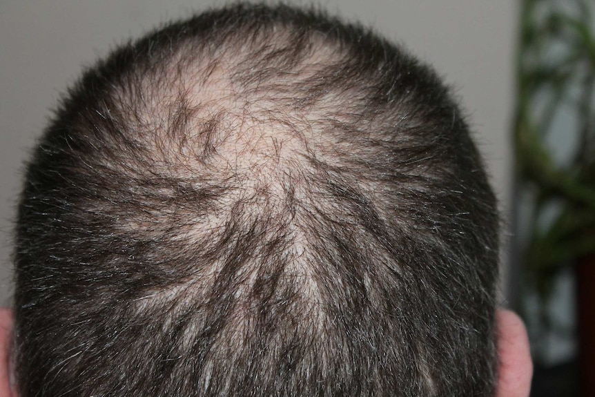 Follicle one of growing hairs multiple out multiple hairs