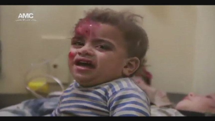 Children are treated by medical staff after shells and bombs hit eastern Aleppo
