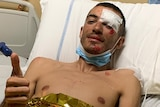 A bruised looking man lies in a hospital bed, smiling at the camera.