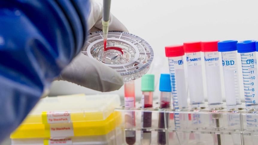 Testing a blood sample