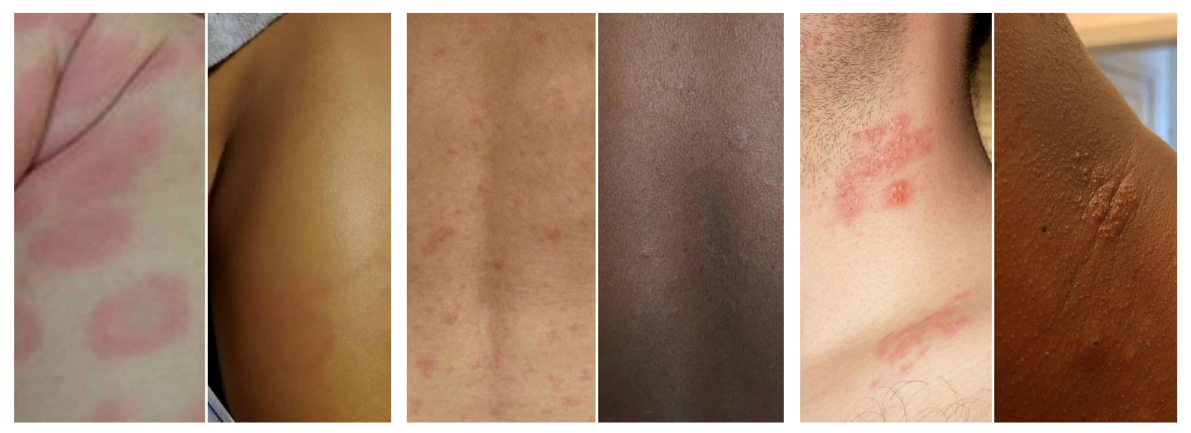 A collage of three photos. Each photo shows a skin condition on white and black or brown skin. Only the white skin has redness.
