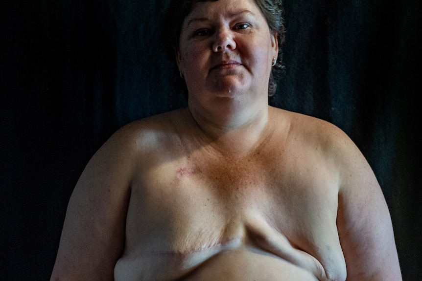 Heidi Arntzen stands topless, showing the mastectomy scars and the excess skin her surgeon left her with.