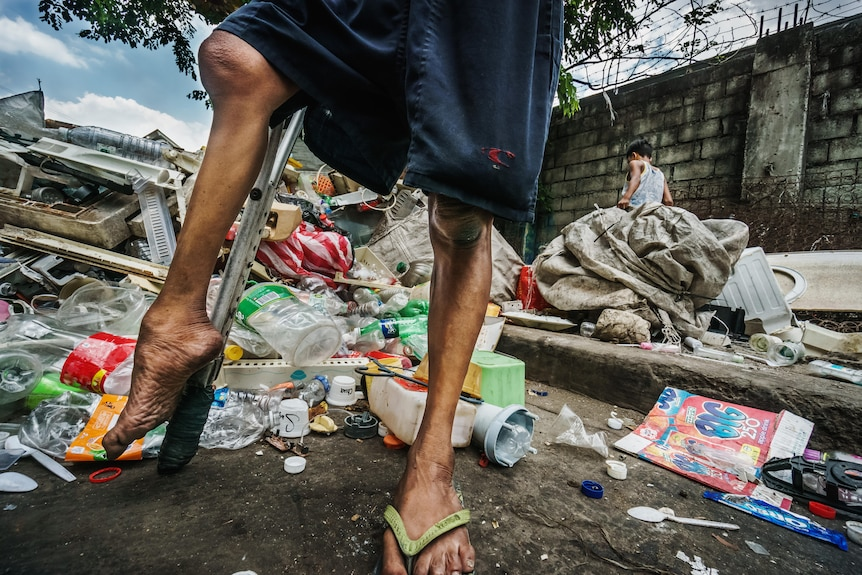 A man with polio who lives in a Manila junkyard shows how his legs have been affected.