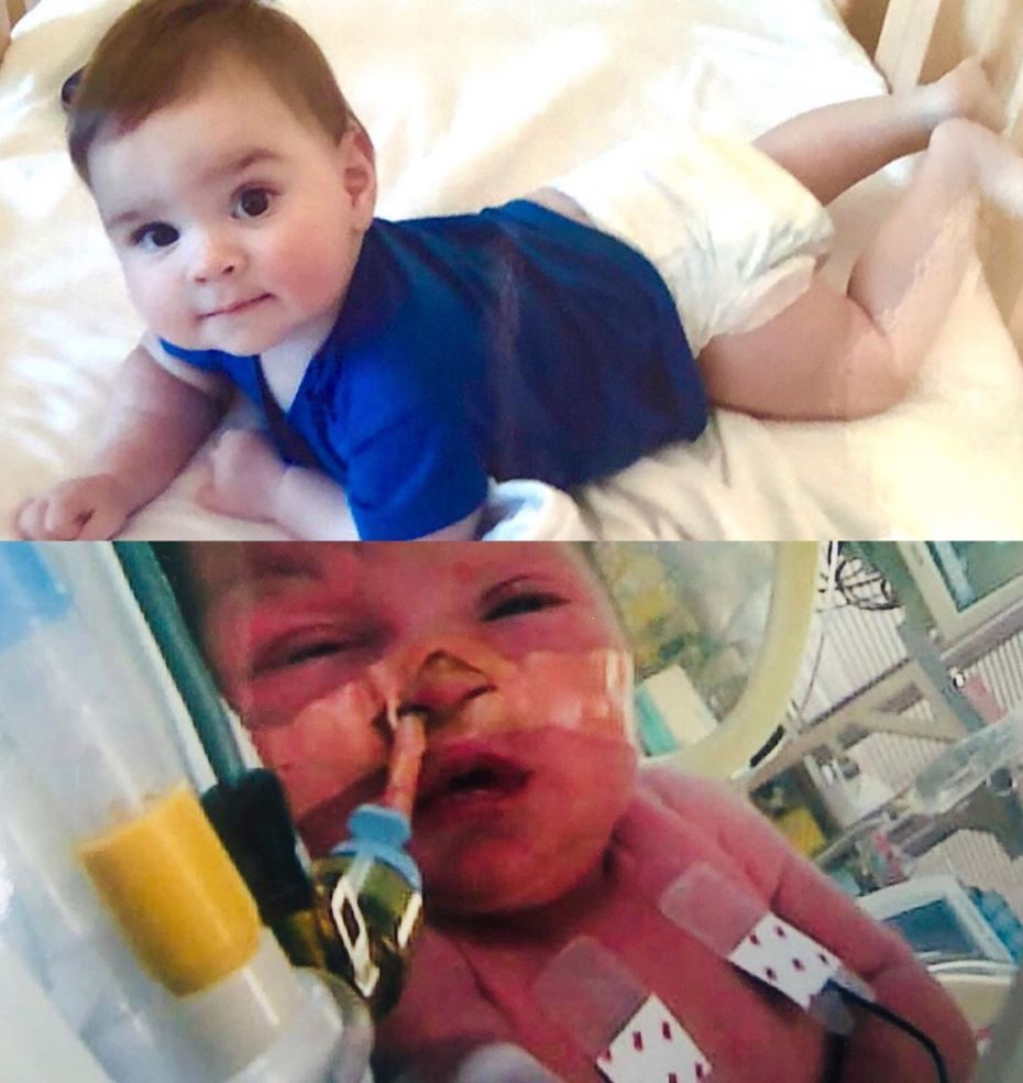 Two pictures of the same baby. One in a hospital crib with tubes attached one six months later of a healthy looking baby.