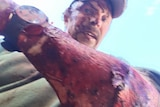 US man, Todd Orr documents injuries after being attacked by a grizzly bear in Montana. October 2016.