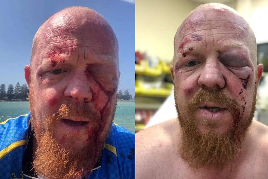 Two-side-by-side images of a bearded man with facial injuries. In one he stands lakeside, the other is in hospital.