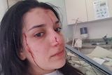 A woman with black hair looks away with blood dripping down her face as she lays on a hospital bed.