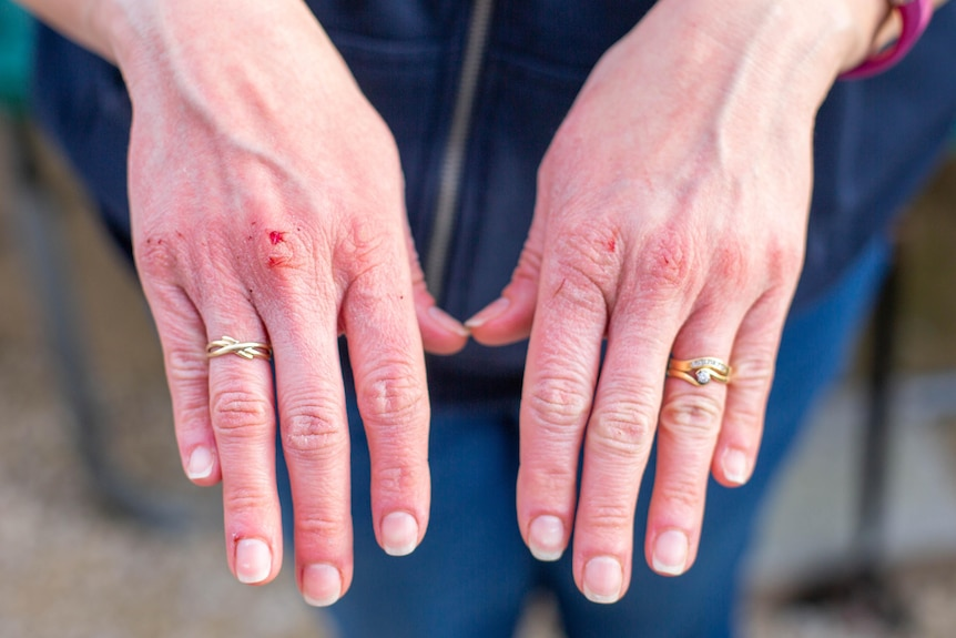 Two hands with dermatitis appearing over the knuckles.