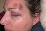 Amanda Treagus with a bruised eye and injury to her head