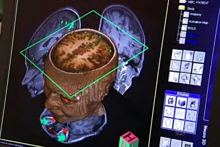 A brain is scanned at Melbourne's Florey Neuroscience Institute.