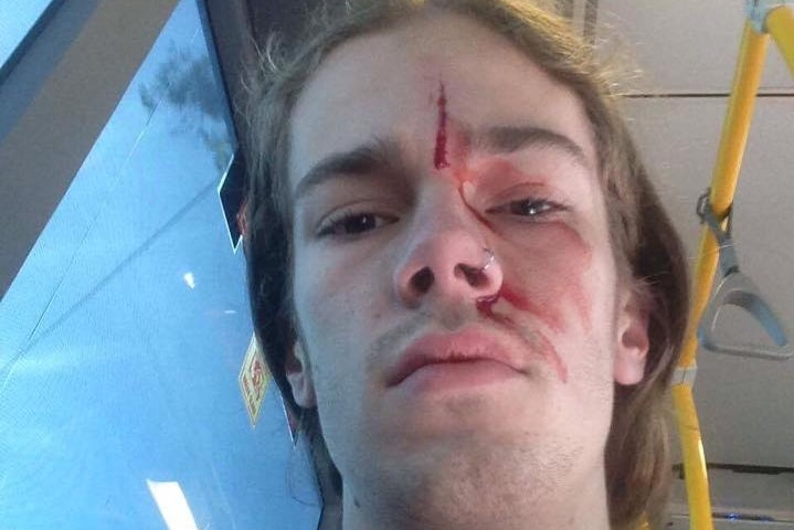Kevin Rudd's godson Sean with blood on his face