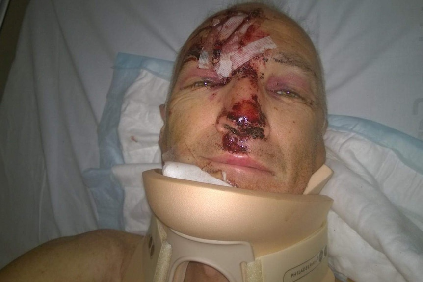 Neil Farrar suffered multiple injuries after he was hit by a car while cycling in Mentone.