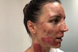 Rebecca Wiasak shows off the injuries she sustained during the Women's Tour Down Under in Adelaide