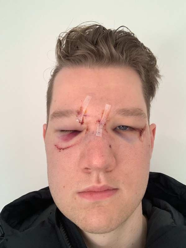 A man with stiches on his face, black eyes.