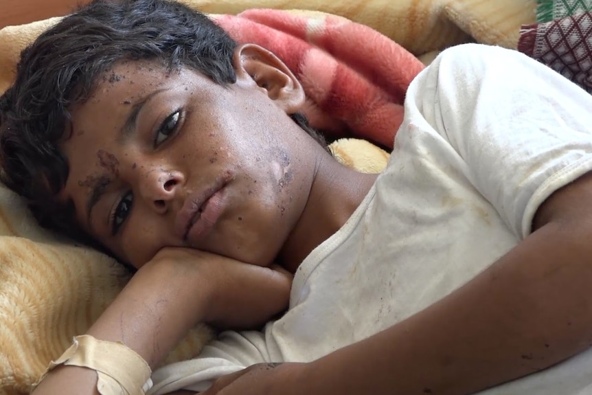 young boy lying in hospital bed with wounds that are healing.