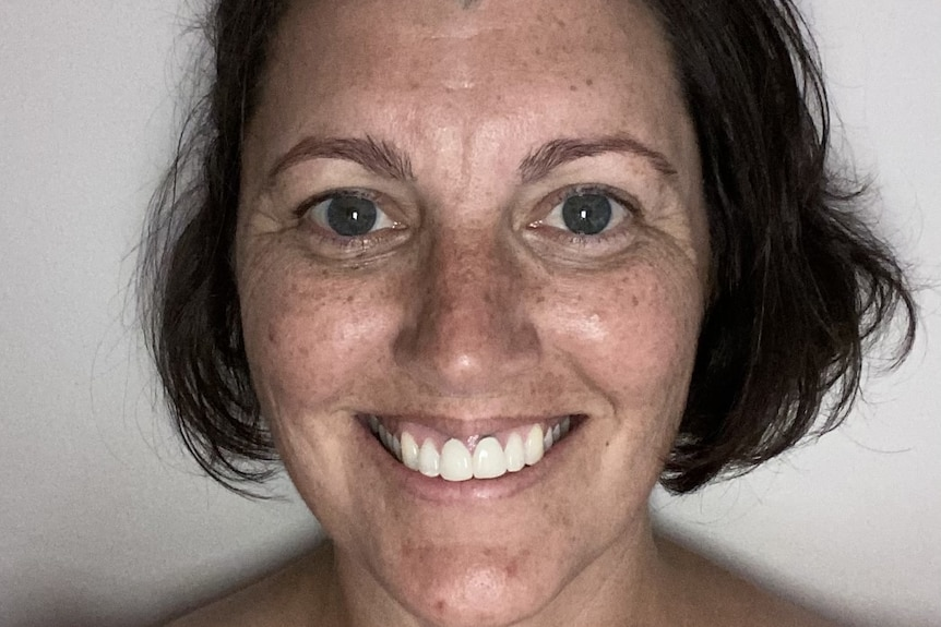 A photo of a woman with a big smile, brown hair and freckles.