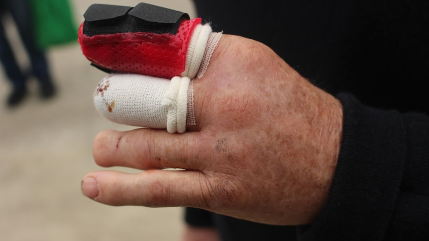 A close up picture of his hand, with one finger bandaged, one in a cast and one shorter than it should be