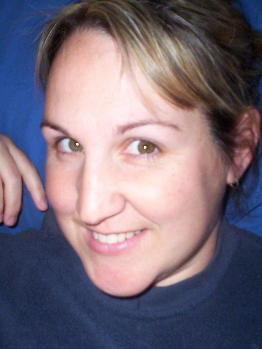 Tanya Davidson before she developed the rash.