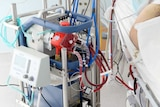 An ECMO machine connected to a patient in an ICU.