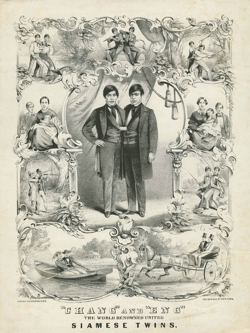 Black and white illustration of Chang and Eng.