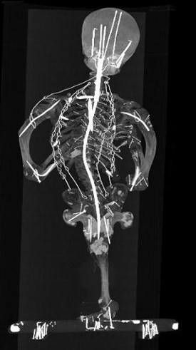 X-ray image of the bones of a seated person
