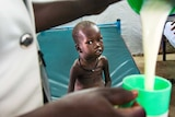 A malnourished child with visible ribs and a distended belly watches an aid worker pour milk. Juba, South Sudan.