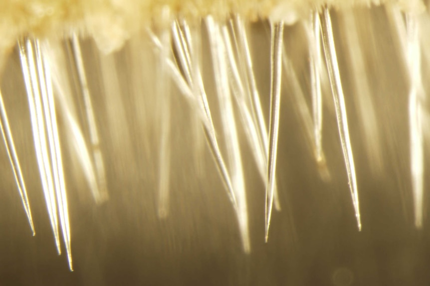An extreme magnification of stinging tree needles-like hairs called trichomes.