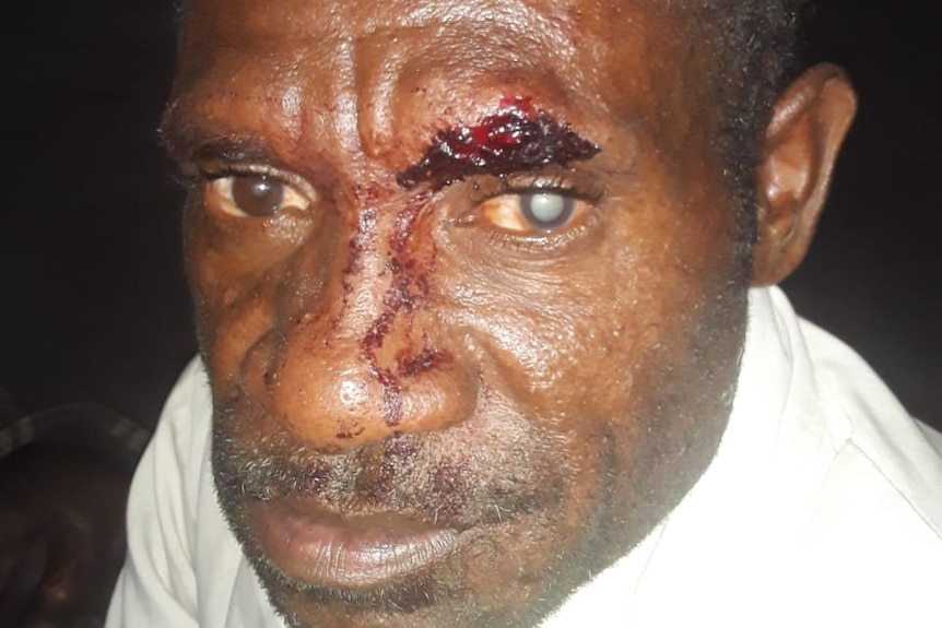 A West Papuan man with a face injury.