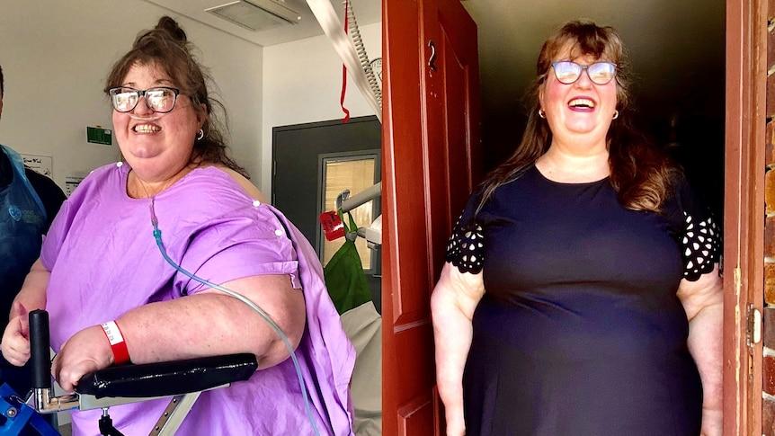 310kg woman in pink robe standing with walker beside same woman weighing 177kg.