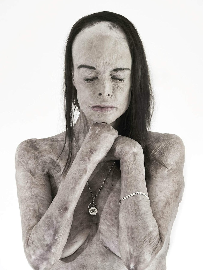 Portrait of woman with extensive scarring from burns with eyes closed.