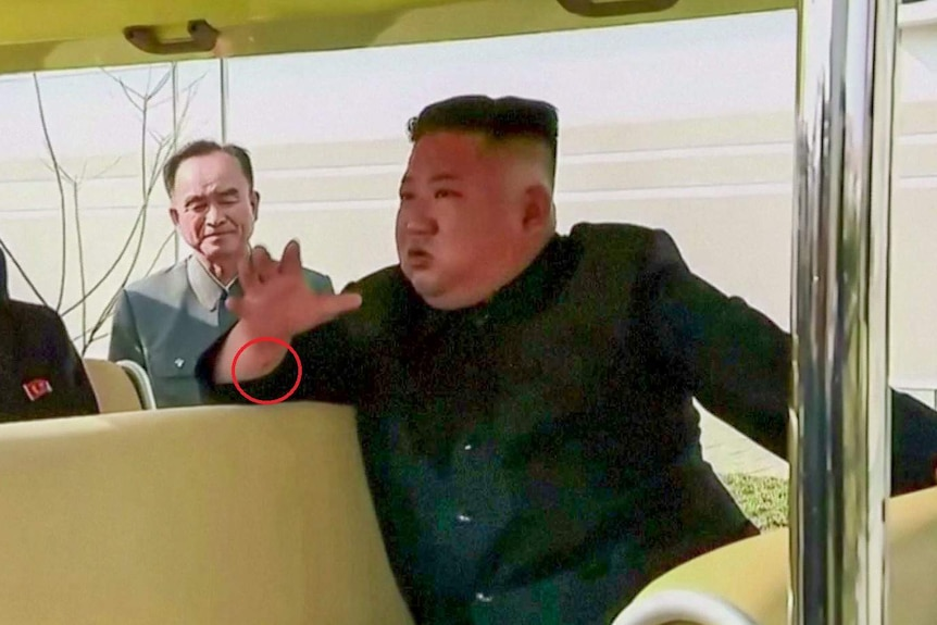 Kim Jong-un in a golf cart with a small scar on his wrist