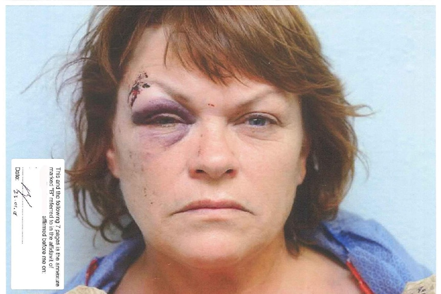 Police photo of Jonda Stephen's face showing one bruised and swollen eye with a cut on the eyebrow