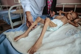 A severely malnourished boy rests on a hospital bed in Yemen