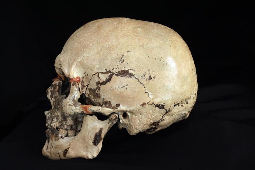 The skull Tom Baxter took in 1978
