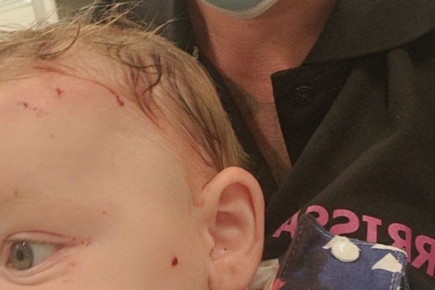 A mum wearing a mask holds her baby who has bite marks above his left eye