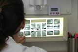 Dentist examines xray