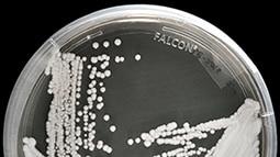Fungi in a petri dish