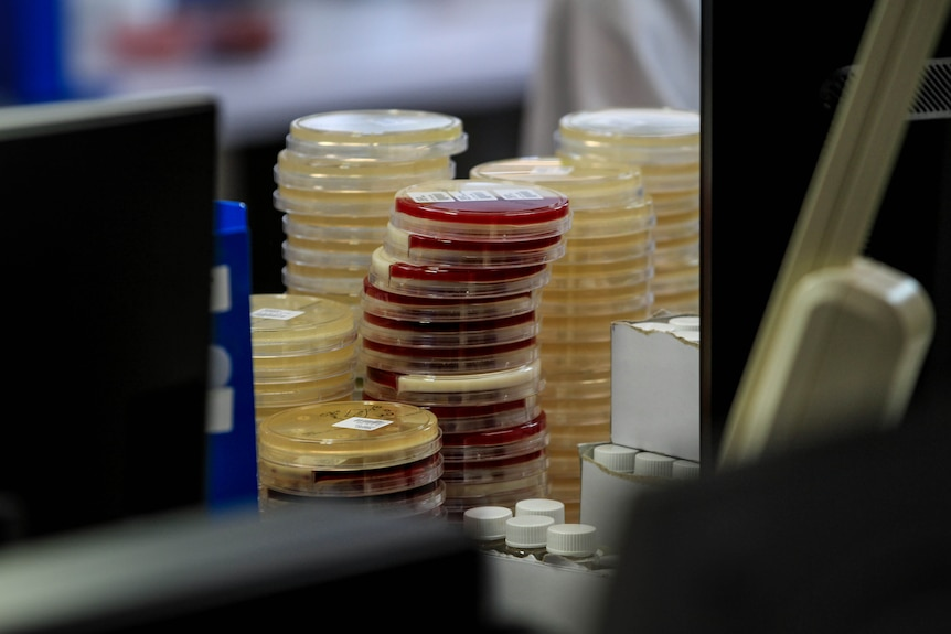 Stack of small plastic containers with red and yellow samples inside, pictured in a lab setting.